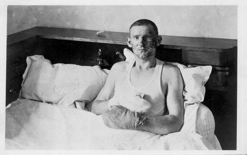 2nd Lt Andrew G. Lindsay, Taken in Evreux, France, while recuperating with the French Underground.  Burned as he was bailing out through the open bomb bay doors of